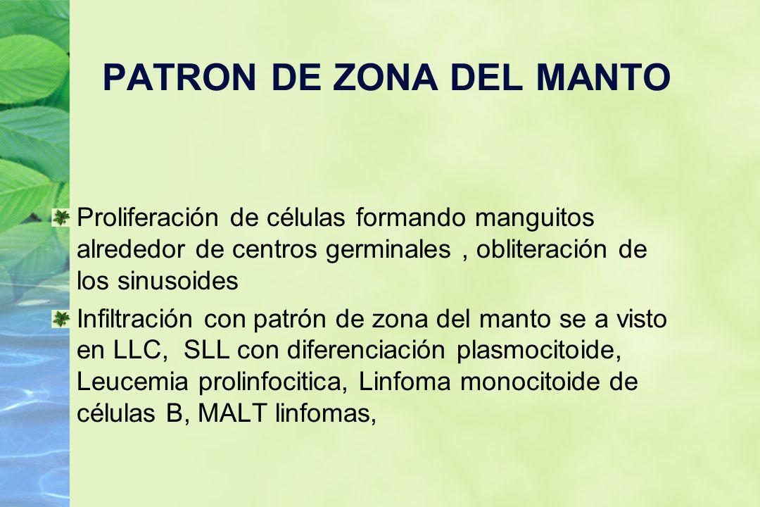PATRON DE ZONA DEL MANTO Proliferación de células formando manguitos alrededor de centros germinales, obliteración de los sinusoides Infiltración con