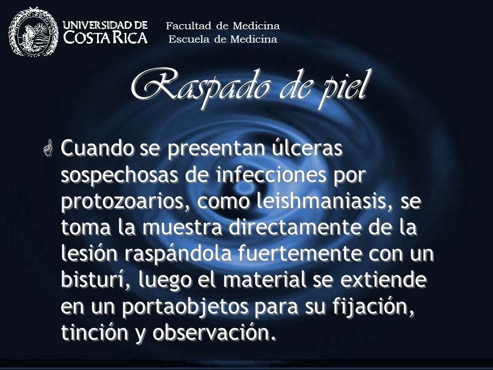 Raspado de piel G Cuando se presentan úlceras sospechosas de infecciones por protozoarios, como leishmaniasis, se toma la muestra directamente de la l