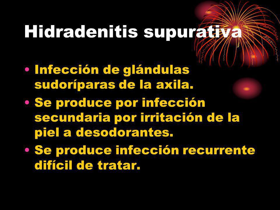 Hidradenitis supurativa Infección de glándulas sudoríparas de la axila. Se produce por infección secundaria por irritación de la piel a desodorantes.