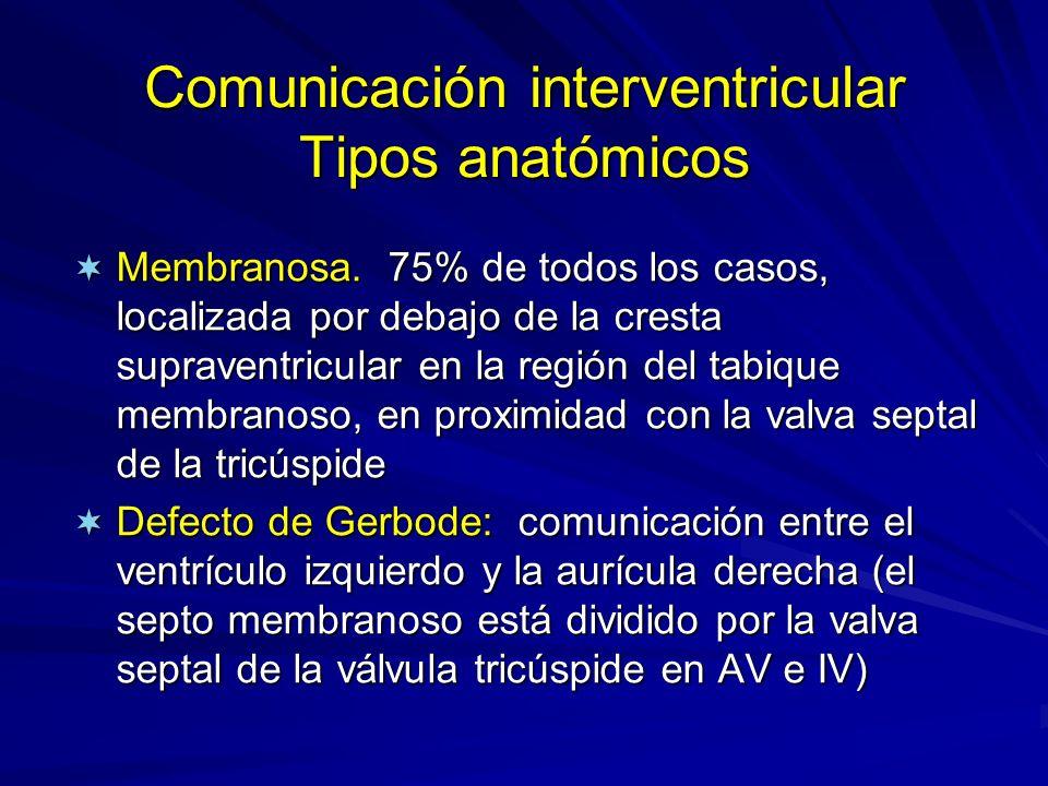 Comunicación interventricular Tipos anatómicos ¬ Membranosa. 75% de todos los casos, localizada por debajo de la cresta supraventricular en la región