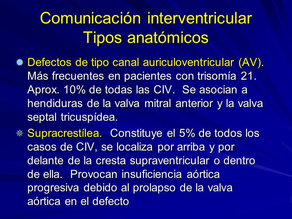 Comunicación interventricular Tipos anatómicos ® Defectos de tipo canal auriculoventricular (AV). Más frecuentes en pacientes con trisomía 21. Aprox.