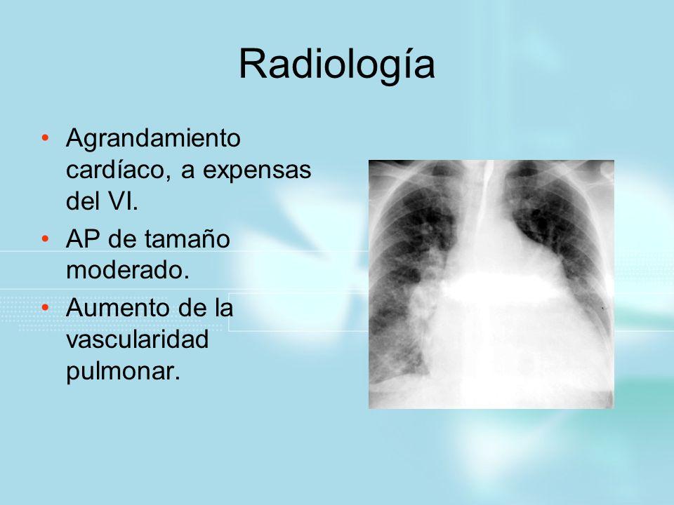 Radiología Agrandamiento cardíaco, a expensas del VI. AP de tamaño moderado. Aumento de la vascularidad pulmonar.
