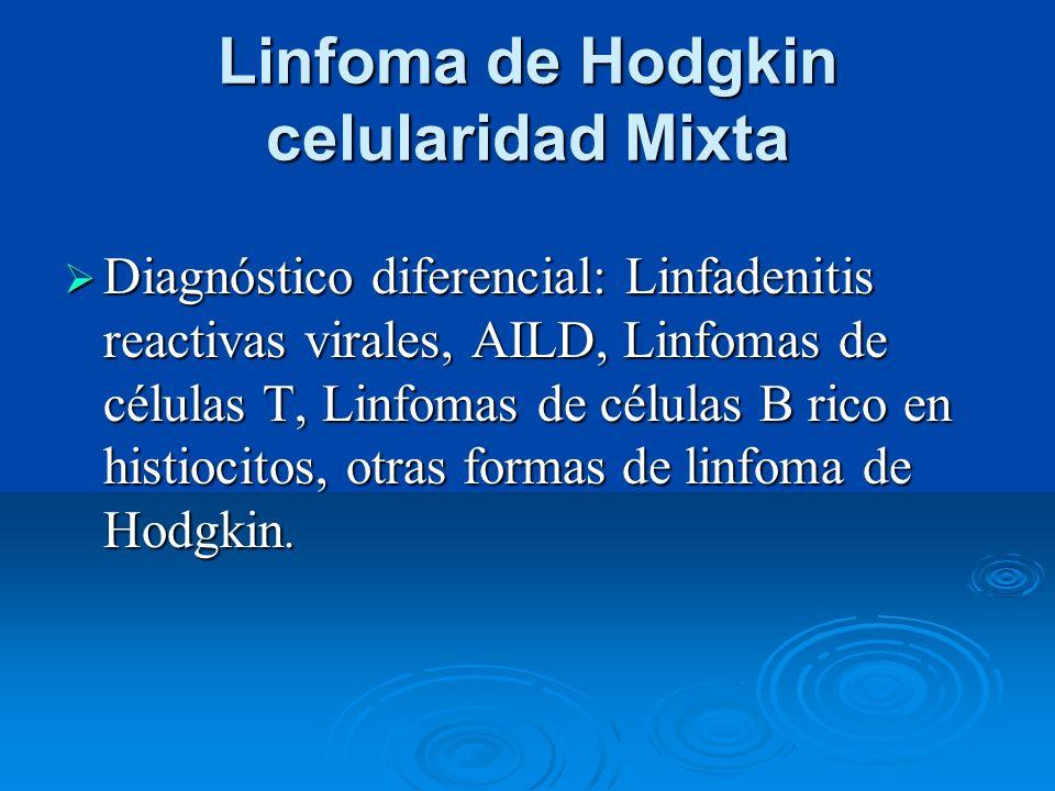 Linfoma de Hodgkin celularidad Mixta Diagnóstico diferencial: Linfadenitis reactivas virales, AILD, Linfomas de células T, Linfomas de células B rico