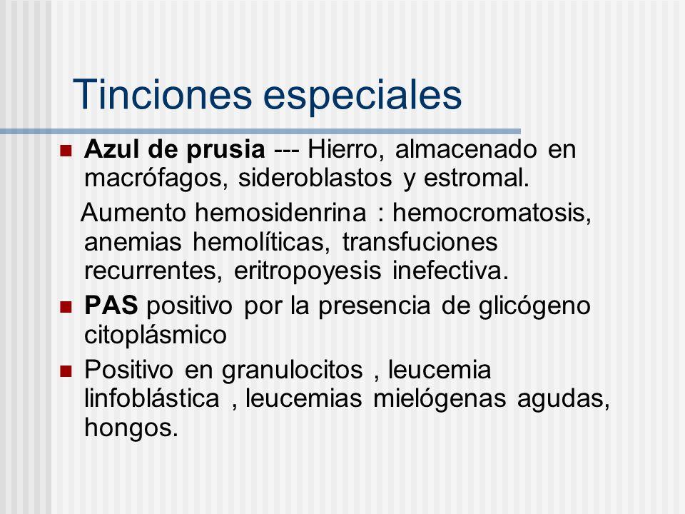Tinciones especiales Azul de prusia --- Hierro, almacenado en macrófagos, sideroblastos y estromal. Aumento hemosidenrina : hemocromatosis, anemias he