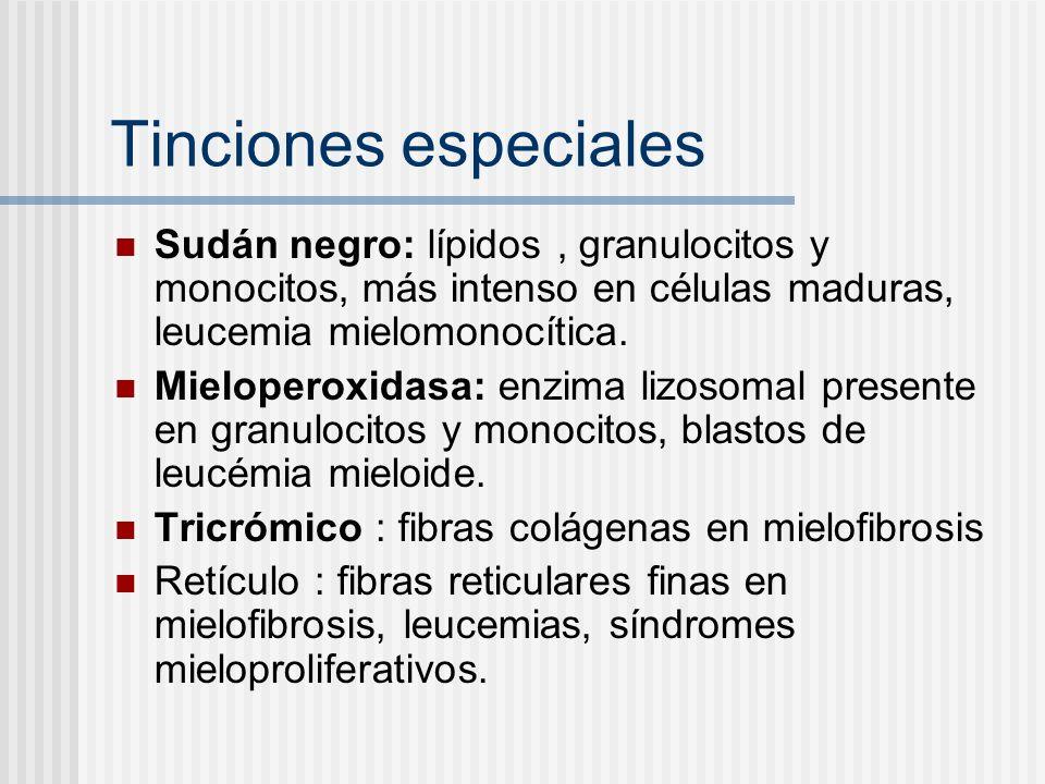 Tinciones especiales Sudán negro: lípidos, granulocitos y monocitos, más intenso en células maduras, leucemia mielomonocítica. Mieloperoxidasa: enzima