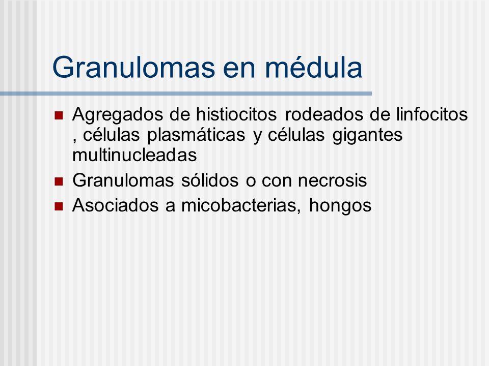 Granulomas en médula Agregados de histiocitos rodeados de linfocitos, células plasmáticas y células gigantes multinucleadas Granulomas sólidos o con n