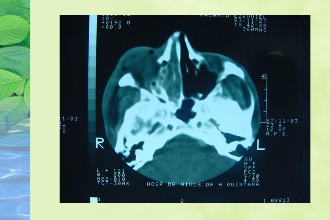 Linfoma T periférico Incluye todos los linfomas T no linfoblásticos.