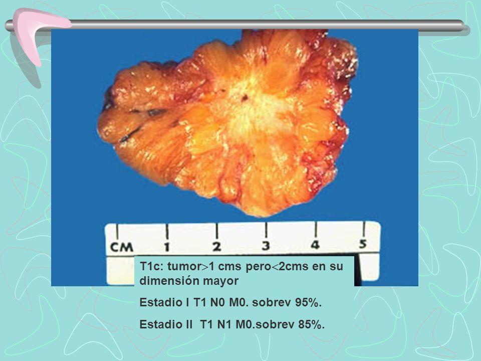T1c: tumor 1 cms pero 2cms en su dimensión mayor Estadio I T1 N0 M0. sobrev 95%. Estadio II T1 N1 M0.sobrev 85%.