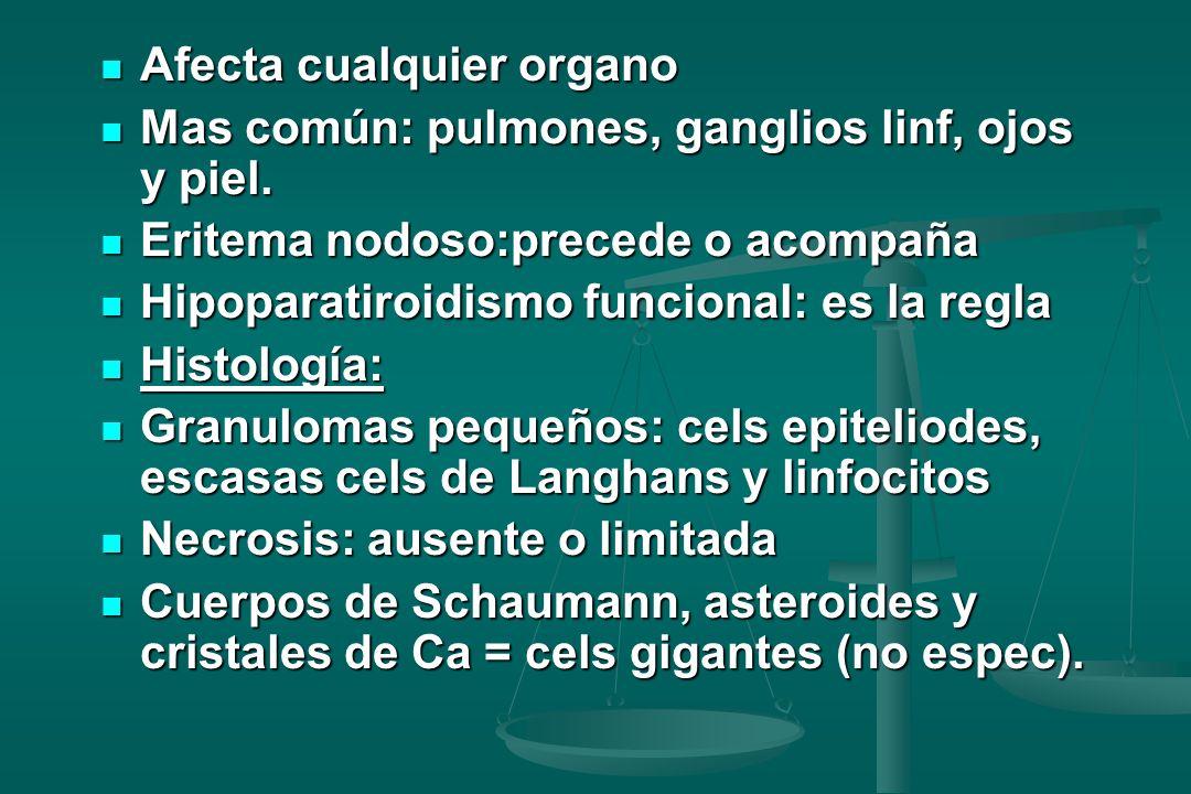 Afecta cualquier organo Afecta cualquier organo Mas común: pulmones, ganglios linf, ojos y piel. Mas común: pulmones, ganglios linf, ojos y piel. Erit