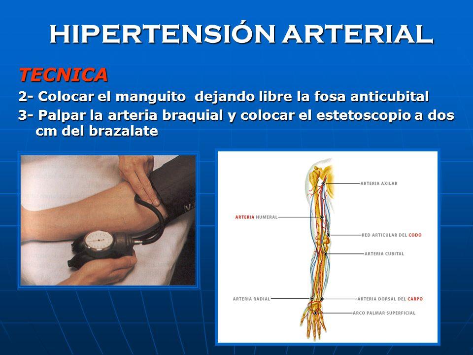 HIPERTENSIÓN ARTERIAL TECNICA 2- Colocar el manguito dejando libre la fosa anticubital 3- Palpar la arteria braquial y colocar el estetoscopio a dos cm del brazalate