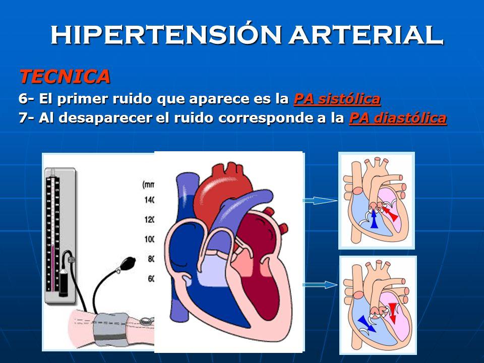 HIPERTENSIÓN ARTERIAL TECNICA 4- Insuflar el brazalate 20-30 mmHg por arriba del valor donde se dejó percibir la onda de pulso donde se dejó percibir