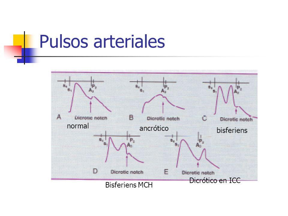 Pulsos arteriales normal ancrótico bisferiens Bisferiens MCH Dicrótico en ICC