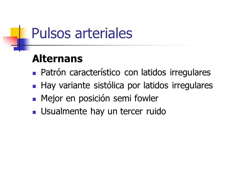 Pulsos arteriales Alternans Patrón característico con latidos irregulares Hay variante sistólica por latidos irregulares Mejor en posición semi fowler