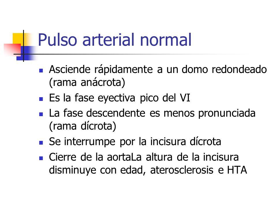 Pulso arterial normal Asciende rápidamente a un domo redondeado (rama anácrota) Es la fase eyectiva pico del VI La fase descendente es menos pronuncia