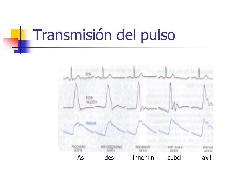 Pulsos arteriales Pulso paradójico Marcada disminución em la amplitud del pulso durante la inspiración o una caída en la presión sistólica central de más de 10 mmhg Taponamiento cardíaco, Síndrome de vena cava superior, asma severa, shock, TEP