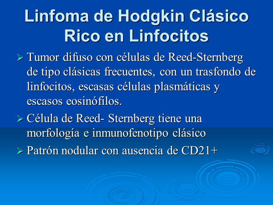 Linfoma de Hodgkin Clásico Rico en Linfocitos Tumor difuso con células de Reed-Sternberg de tipo clásicas frecuentes, con un trasfondo de linfocitos,