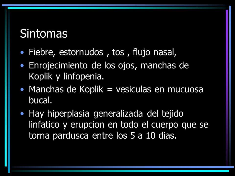 COMPLICACIONES Panencefalitis esclerosante subaguda.