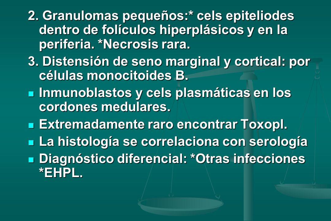 2.Granulomas pequeños:* cels epiteliodes dentro de folículos hiperplásicos y en la periferia.