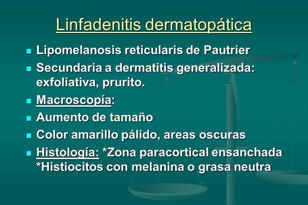 Linfadenitis dermatopática Lipomelanosis reticularis de Pautrier Lipomelanosis reticularis de Pautrier Secundaria a dermatitis generalizada: exfoliativa, prurito.