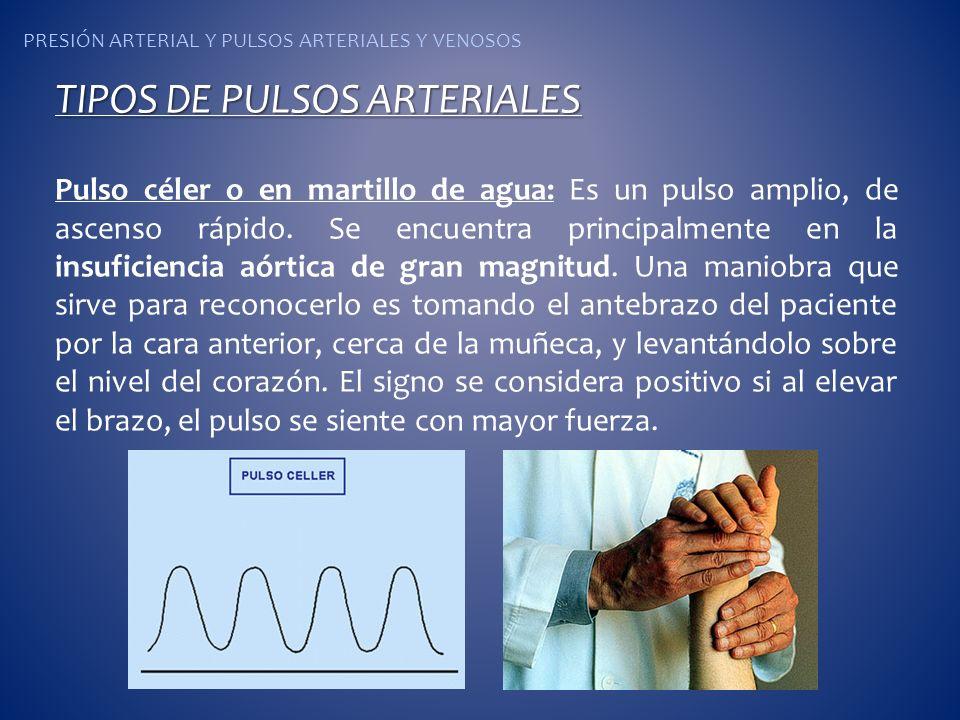 PRESIÓN ARTERIAL Y PULSOS ARTERIALES Y VENOSOS TIPOS DE PULSOS ARTERIALES Pulso céler o en martillo de agua: Es un pulso amplio, de ascenso rápido. Se