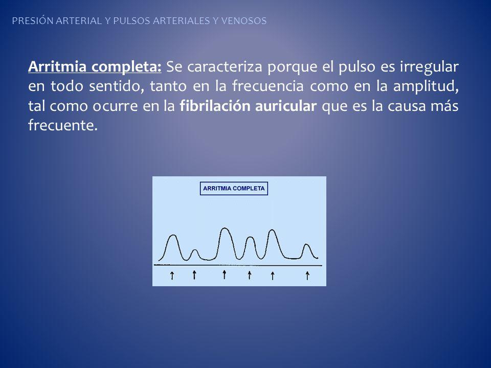 PRESIÓN ARTERIAL Y PULSOS ARTERIALES Y VENOSOS Arritmia completa: Se caracteriza porque el pulso es irregular en todo sentido, tanto en la frecuencia