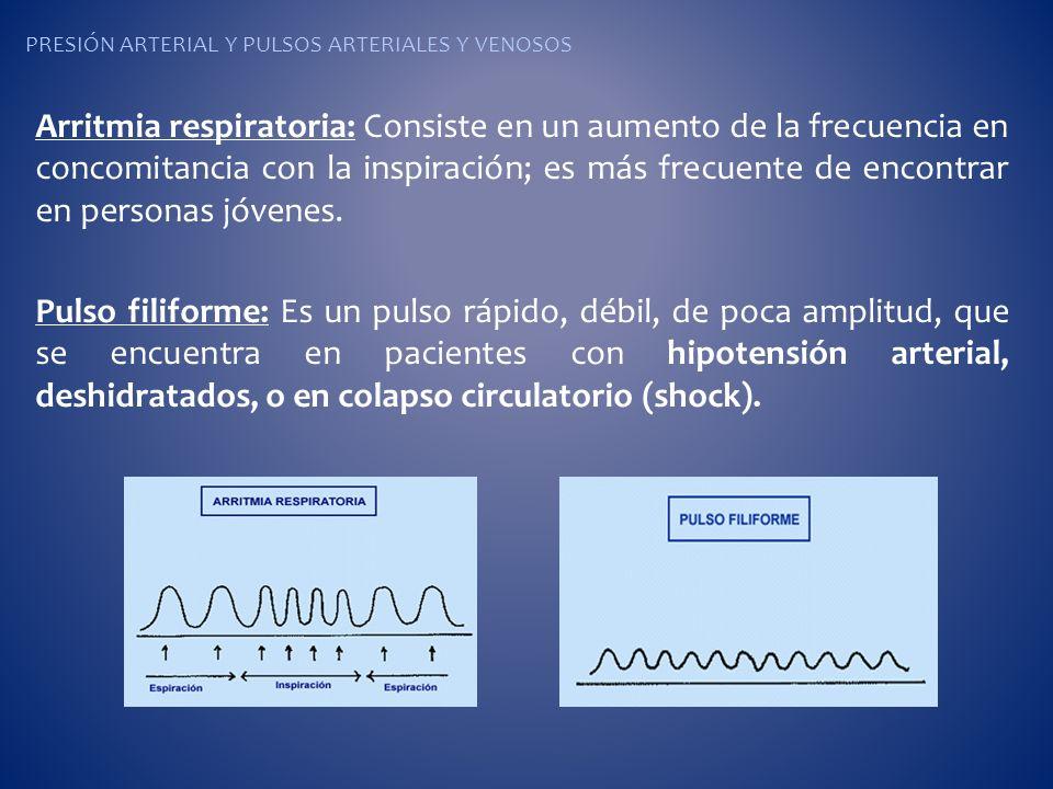 PRESIÓN ARTERIAL Y PULSOS ARTERIALES Y VENOSOS Arritmia respiratoria: Consiste en un aumento de la frecuencia en concomitancia con la inspiración; es