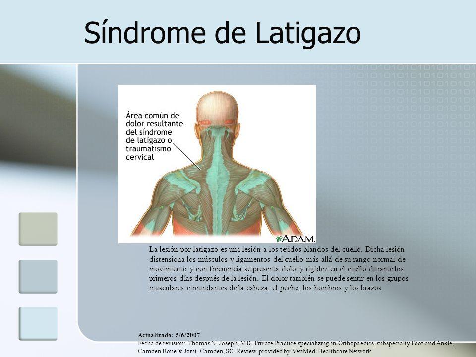 Síndrome de Latigazo La lesión por latigazo es una lesión a los tejidos blandos del cuello. Dicha lesión distensiona los músculos y ligamentos del cue
