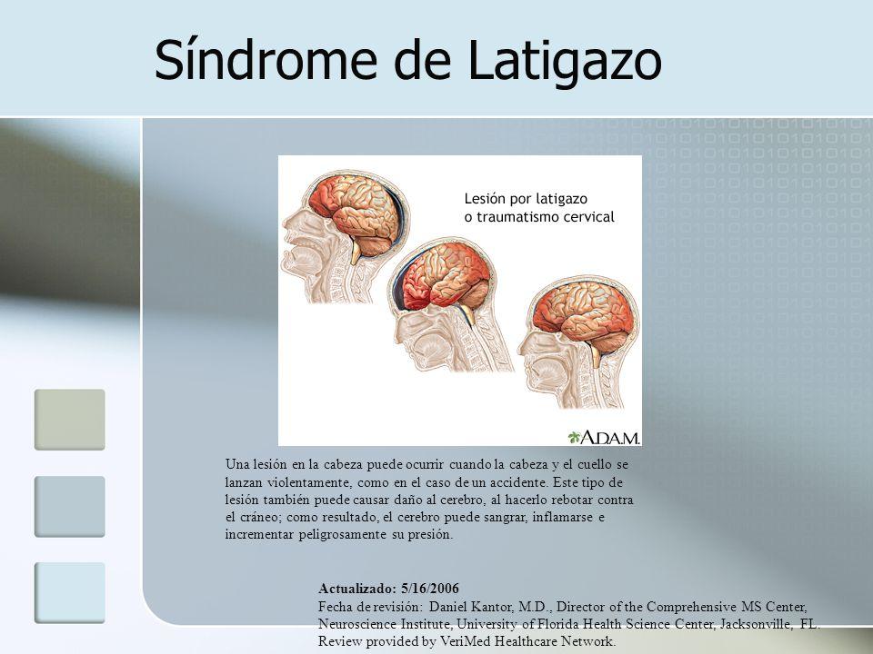 Síndrome de Latigazo Una lesión en la cabeza puede ocurrir cuando la cabeza y el cuello se lanzan violentamente, como en el caso de un accidente. Este
