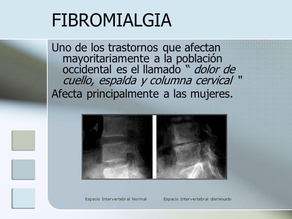 FIBROMIALGIA Uno de los trastornos que afectan mayoritariamente a la población occidental es el llamado dolor de cuello, espalda y columna cervical Af