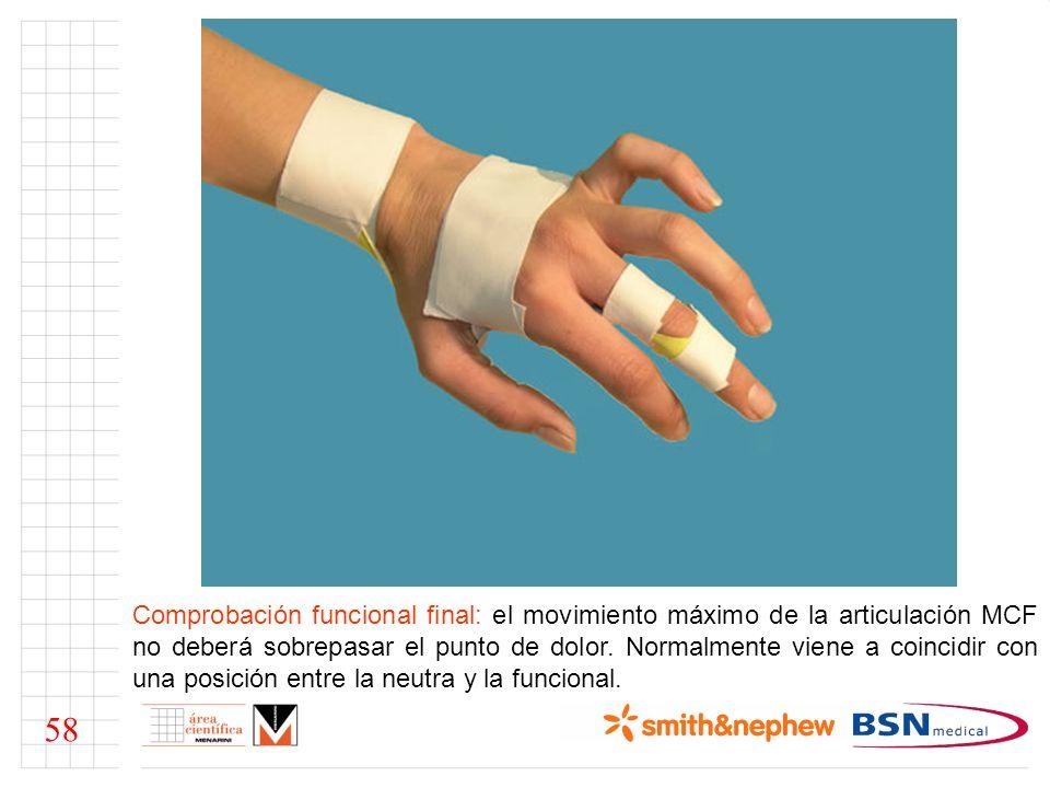 Comprobación funcional final: el movimiento máximo de la articulación MCF no deberá sobrepasar el punto de dolor. Normalmente viene a coincidir con un