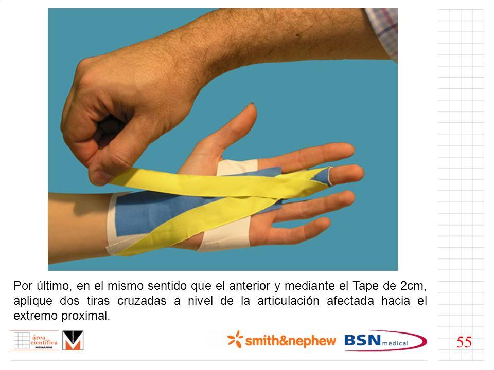 Por último, en el mismo sentido que el anterior y mediante el Tape de 2cm, aplique dos tiras cruzadas a nivel de la articulación afectada hacia el ext