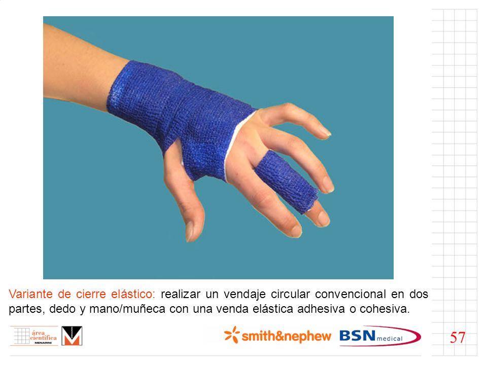 Variante de cierre elástico: realizar un vendaje circular convencional en dos partes, dedo y mano/muñeca con una venda elástica adhesiva o cohesiva. 5