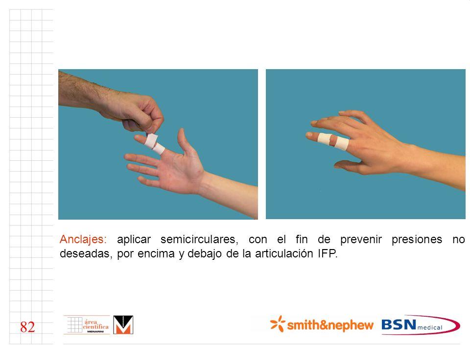 Anclajes: aplicar semicirculares, con el fin de prevenir presiones no deseadas, por encima y debajo de la articulación IFP. 82