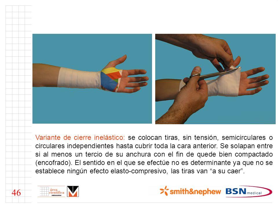 Variante de cierre inelástico: se colocan tiras, sin tensión, semicirculares o circulares independientes hasta cubrir toda la cara anterior.