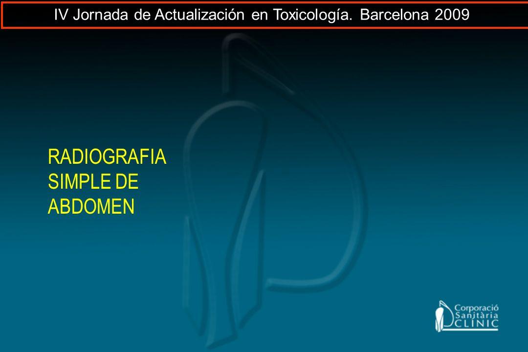 RADIOGRAFIA SIMPLE DE ABDOMEN IV Jornada de Actualización en Toxicología. Barcelona 2009