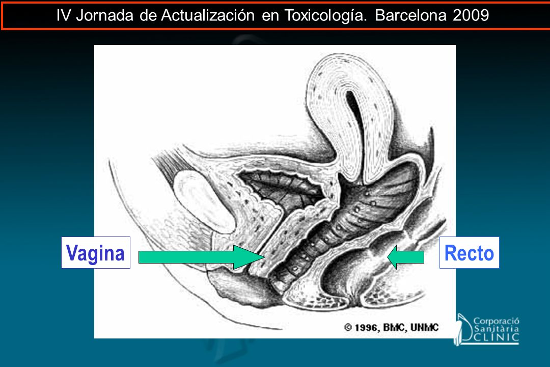 RectoVagina IV Jornada de Actualización en Toxicología. Barcelona 2009