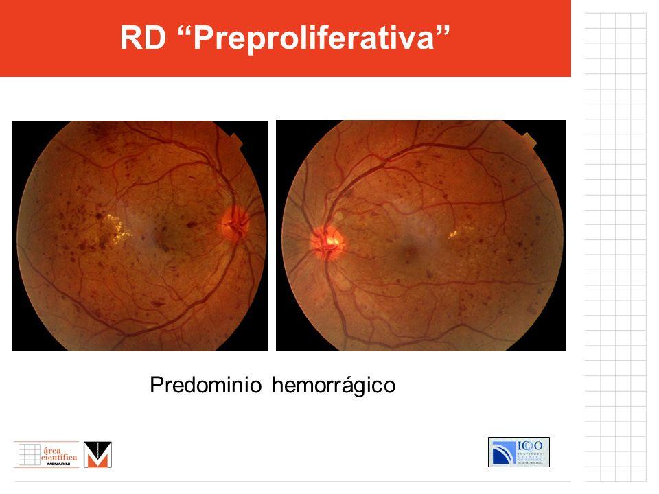RD Preproliferativa Predominio hemorrágico