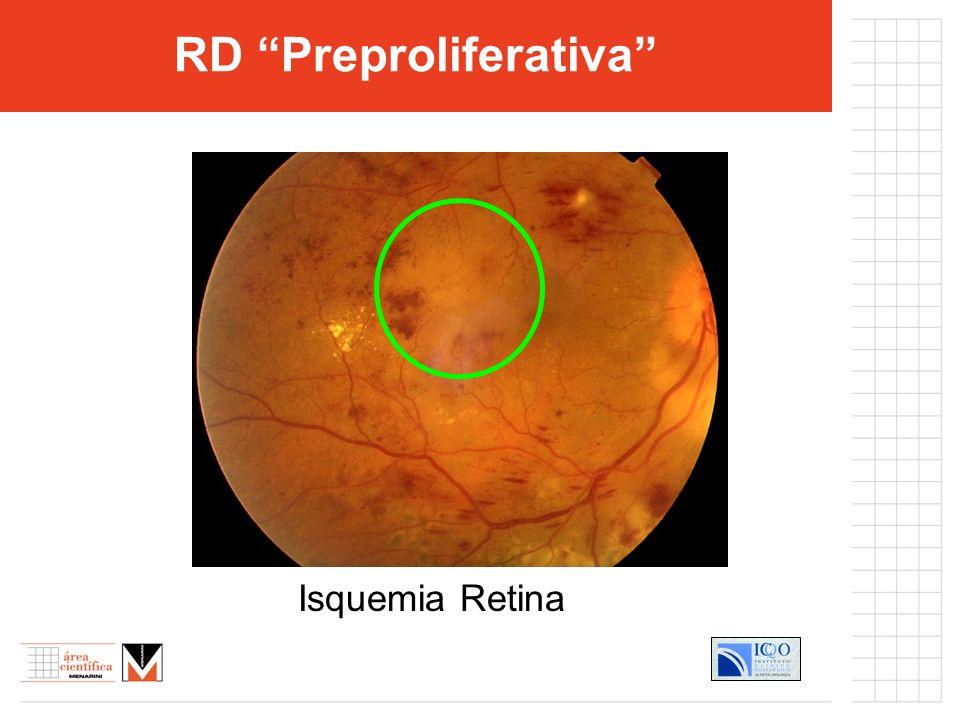 Isquemia Retina RD Preproliferativa