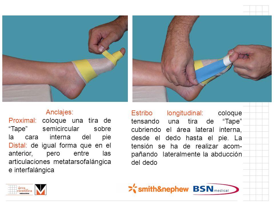 Índice (I) Anclajes: Proximal: coloque una tira de Tape semicircular sobre la cara interna del pie Distal: de igual forma que en el anterior, pero ent