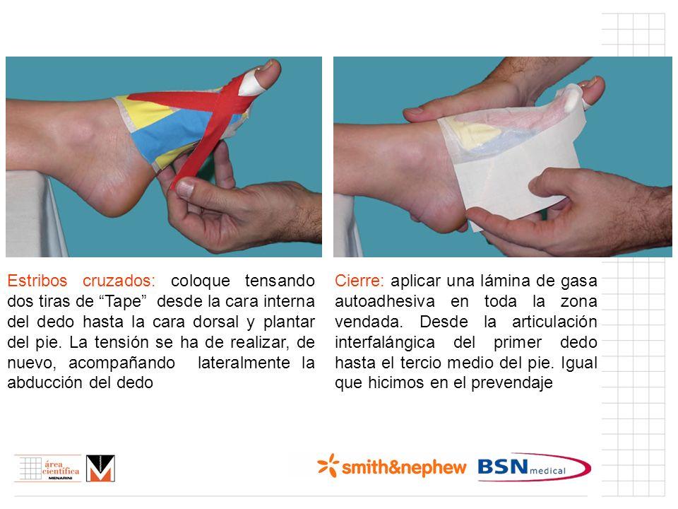 Índice (I) Estribos cruzados: coloque tensando dos tiras de Tape desde la cara interna del dedo hasta la cara dorsal y plantar del pie. La tensión se