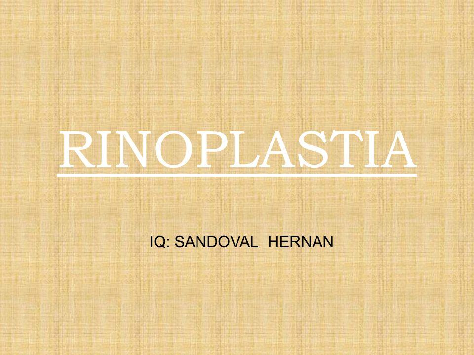 RINOPLASTIA IQ: SANDOVAL HERNAN