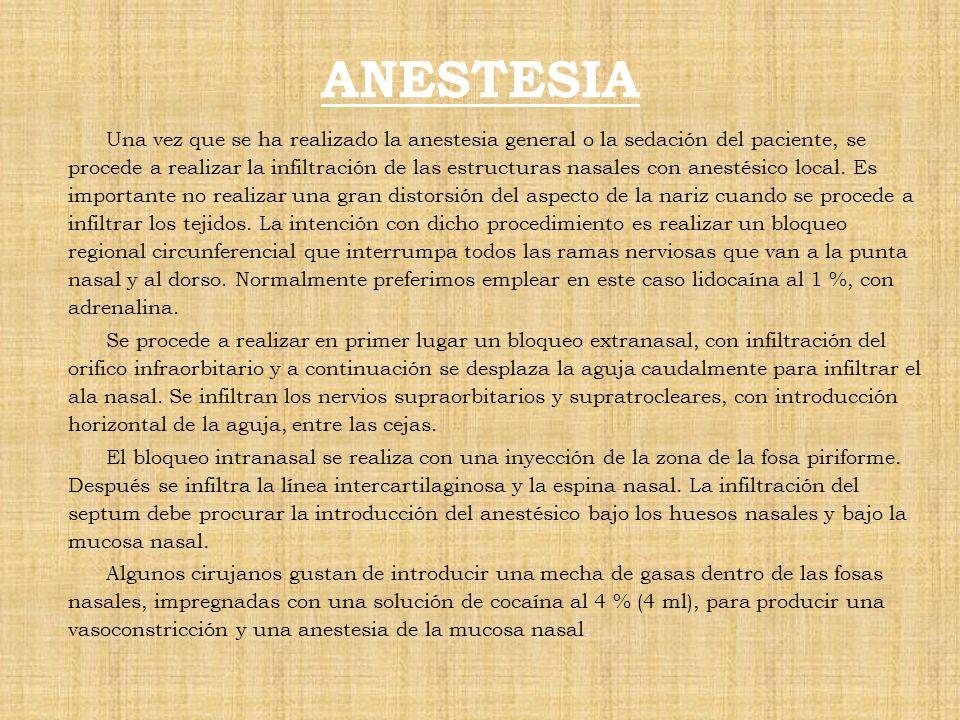ANESTESIA Una vez que se ha realizado la anestesia general o la sedación del paciente, se procede a realizar la infiltración de las estructuras nasale