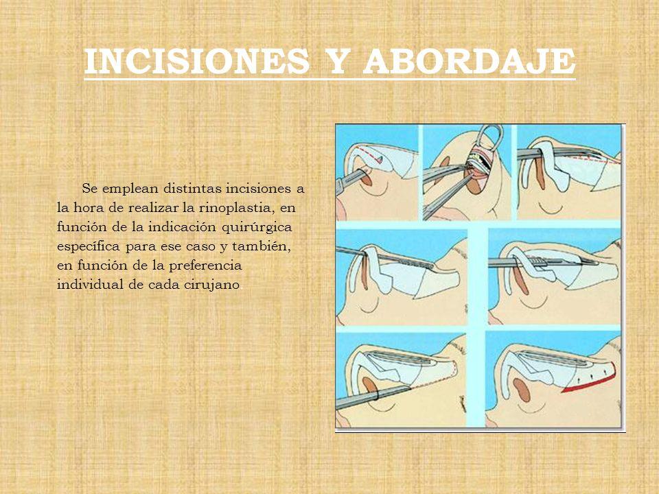 INCISIONES Y ABORDAJE Se emplean distintas incisiones a la hora de realizar la rinoplastia, en función de la indicación quirúrgica específica para ese