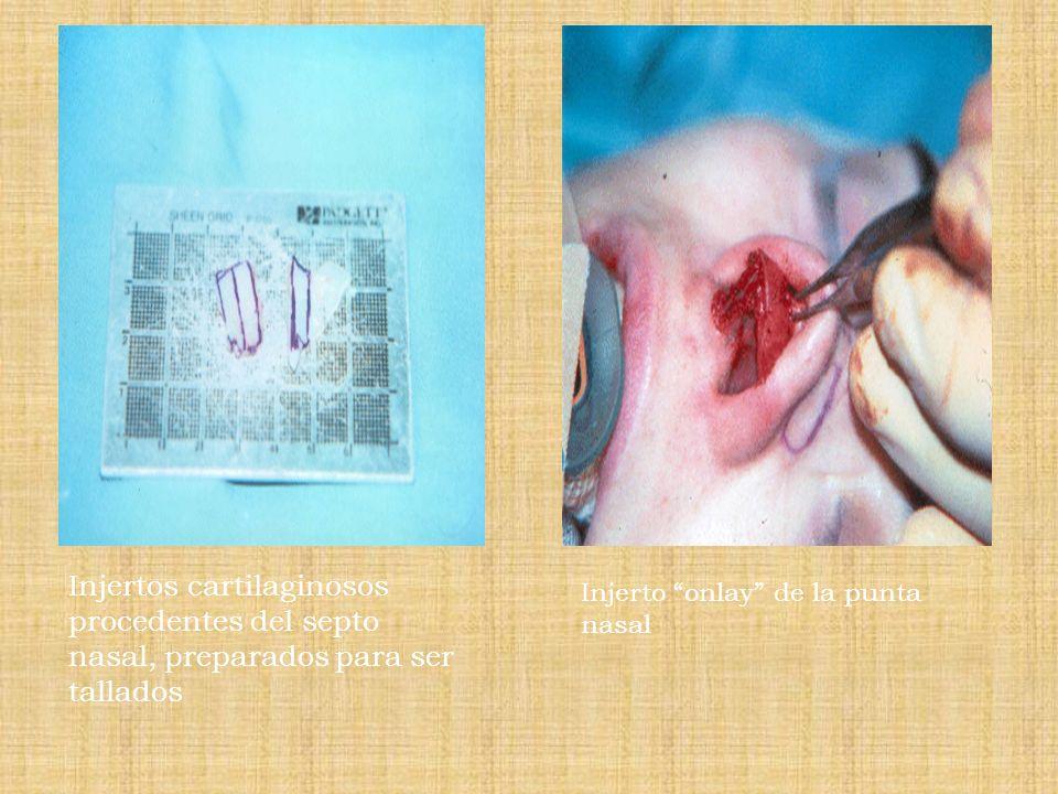 Injertos cartilaginosos procedentes del septo nasal, preparados para ser tallados Injerto onlay de la punta nasal