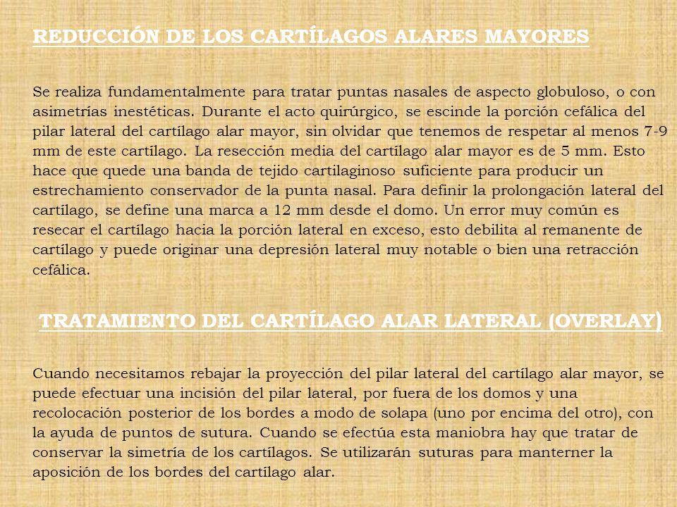 REDUCCIÓN DE LOS CARTÍLAGOS ALARES MAYORES Se realiza fundamentalmente para tratar puntas nasales de aspecto globuloso, o con asimetrías inestéticas.