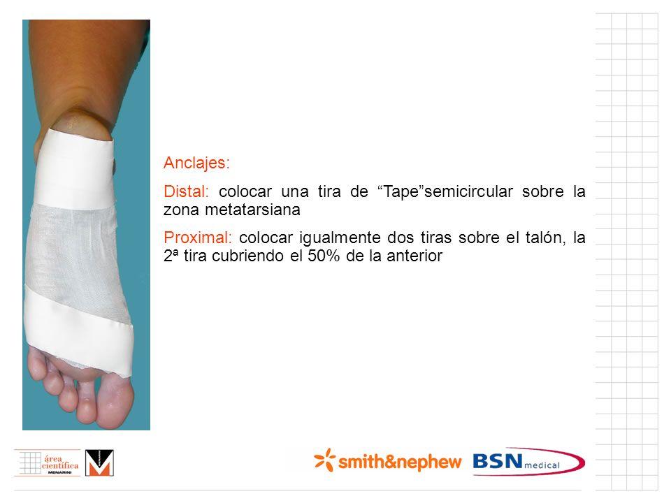 Índice (I) Anclajes: Distal: colocar una tira de Tapesemicircular sobre la zona metatarsiana Proximal: colocar igualmente dos tiras sobre el talón, la