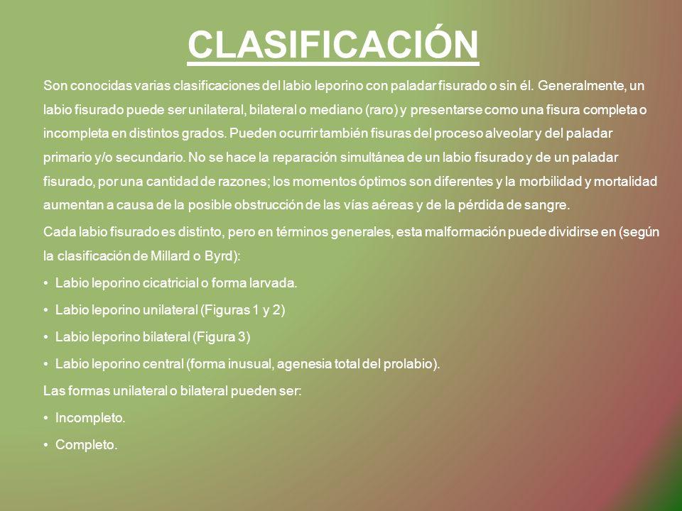 CLASIFICACIÓN Son conocidas varias clasificaciones del labio leporino con paladar fisurado o sin él. Generalmente, un labio fisurado puede ser unilate