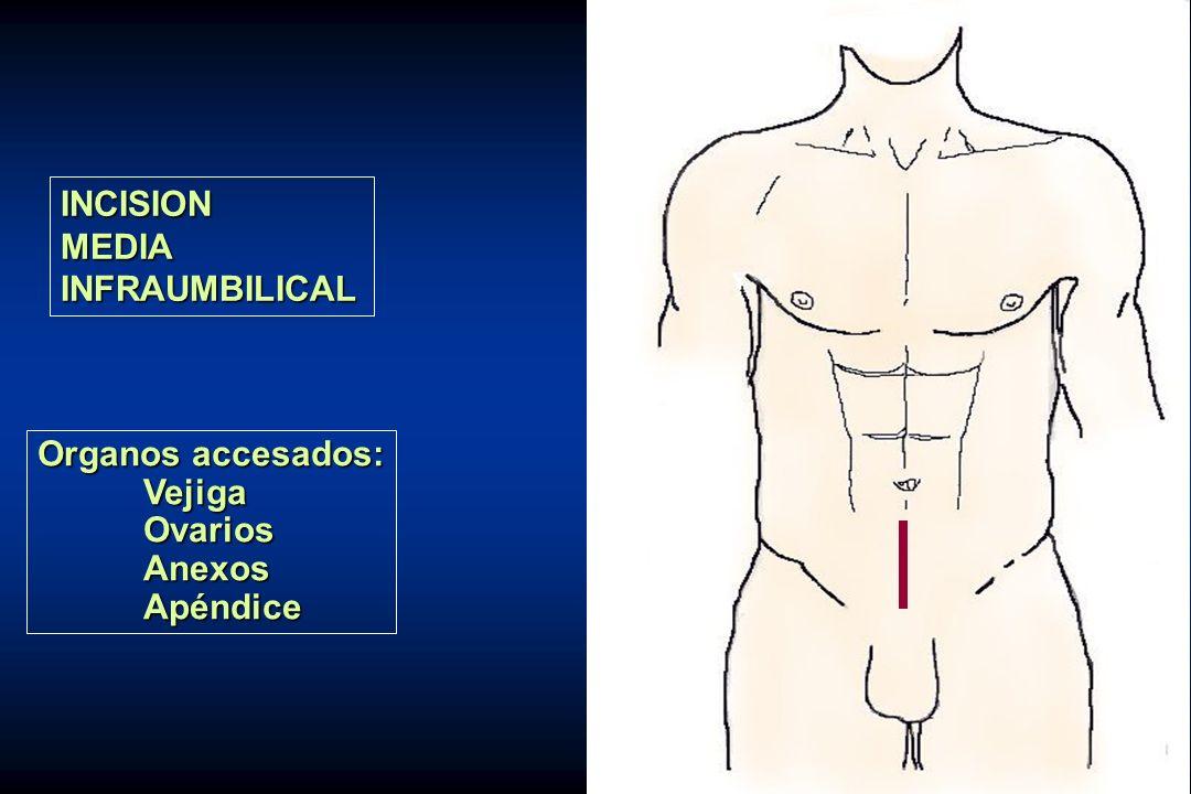 INCISIONMEDIAINFRAUMBILICAL Organos accesados: VejigaOvariosAnexosApéndice