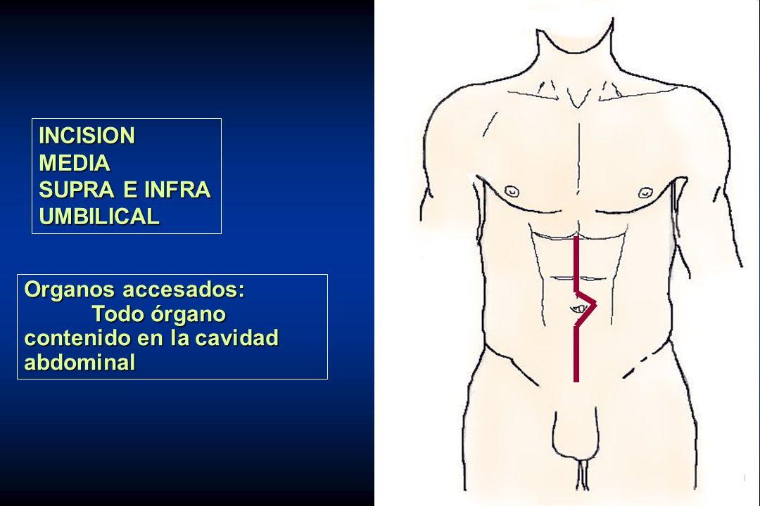 INCISIONMEDIA SUPRA E INFRA UMBILICAL Organos accesados: Todo órgano contenido en la cavidad abdominal