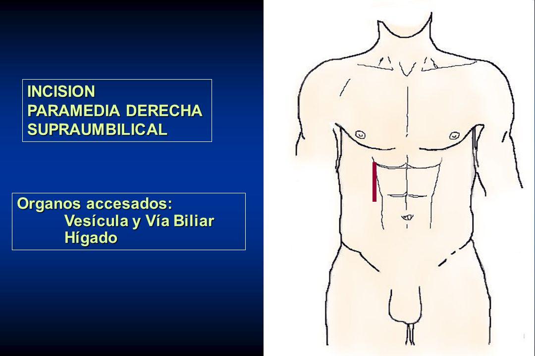 INCISION PARAMEDIA DERECHA SUPRAUMBILICAL Organos accesados: Vesícula y Vía Biliar Hígado